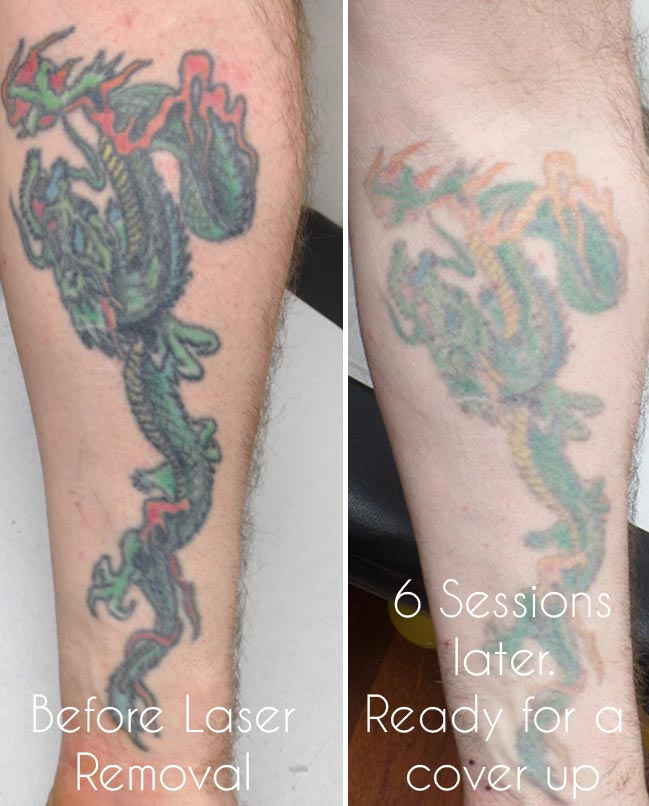Laser tattoo removal birmingham uk for How much to get a tattoo removed