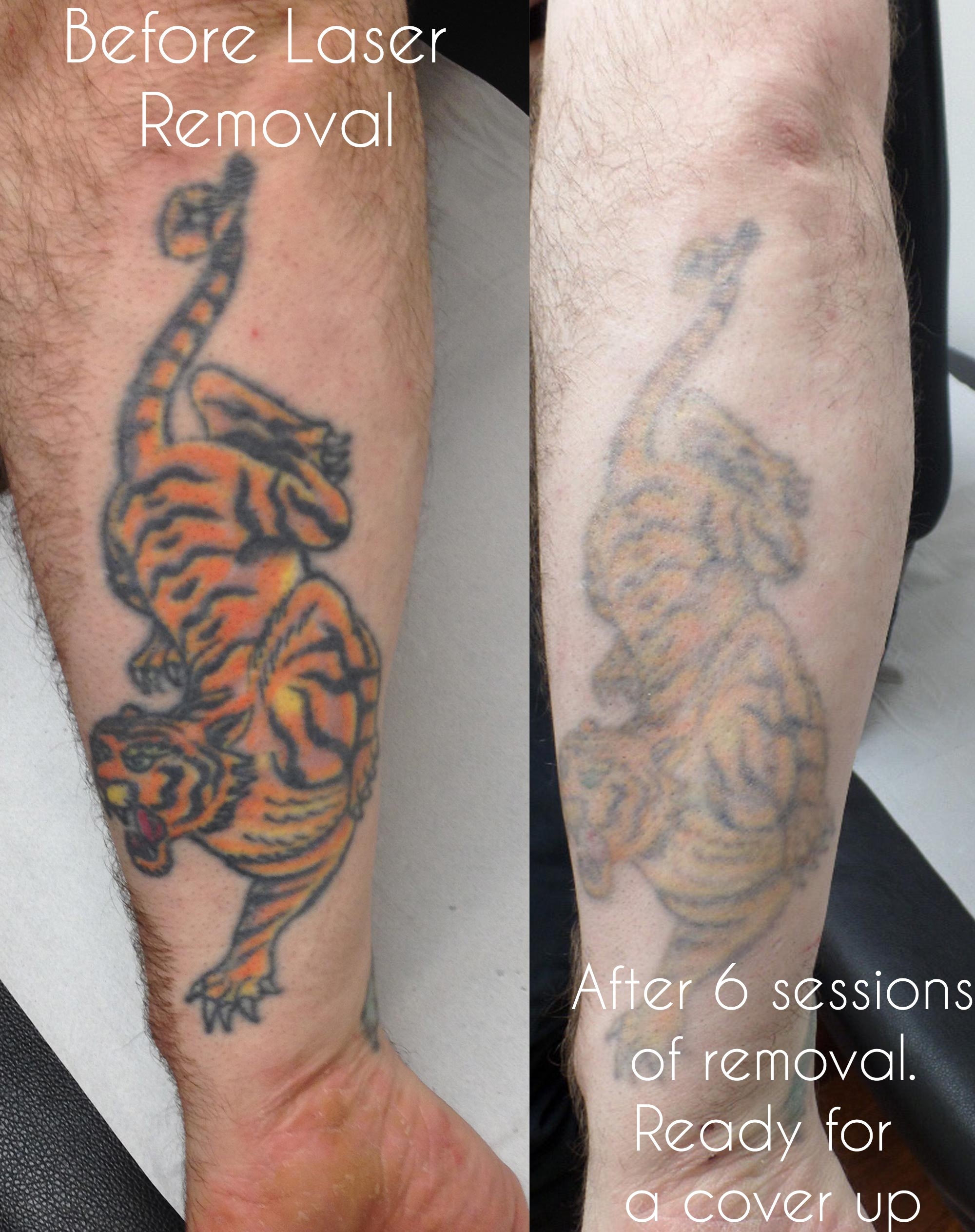 Laser tattoo removal - Birmingham UK. - Modern Body Art