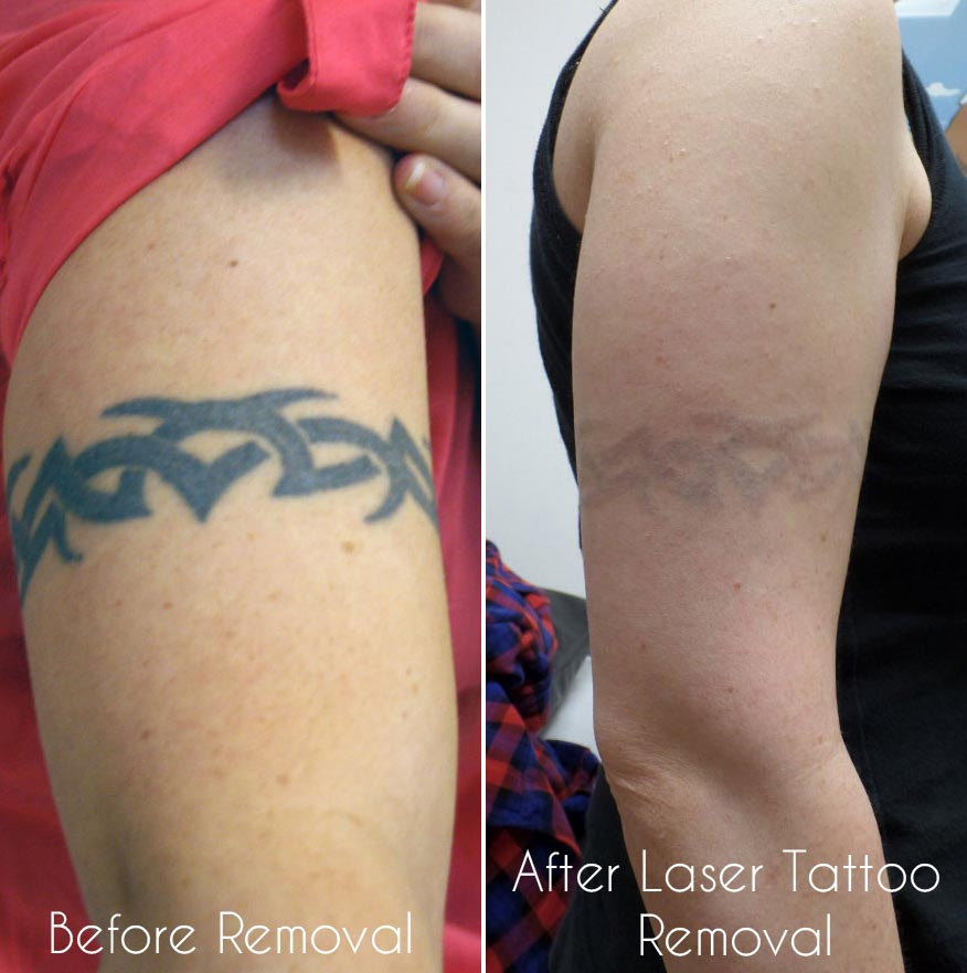 c145dd02e Laser tattoo removal - Birmingham UK.