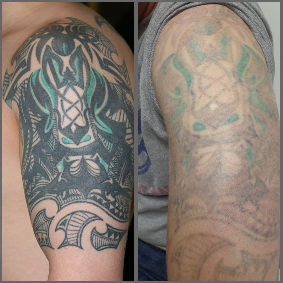 Laser tattoo removal modern body art birmingham for Tattoo removal healing